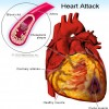 Multivitamins do not prevent Heart Disease